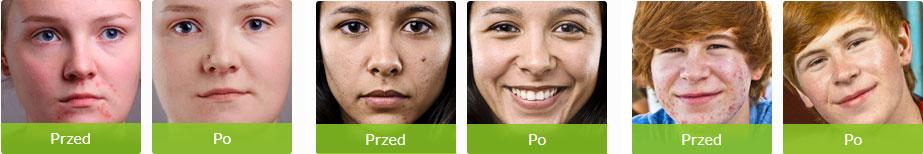 Efekt po zastosowaniu tabletek na trądzik