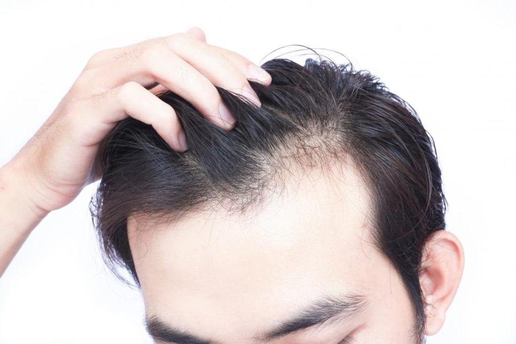 rodzaje łysienia