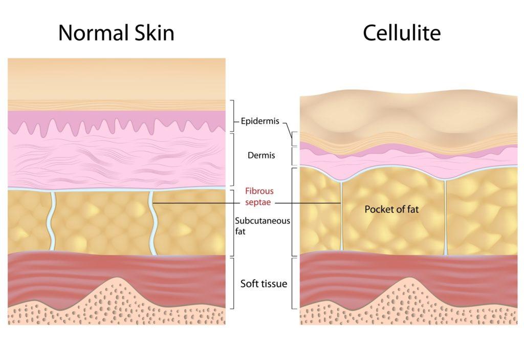 cellulit-krem-tabletki