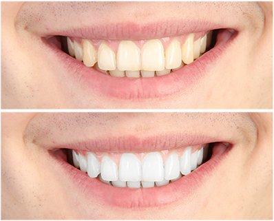 przed po białe zęby