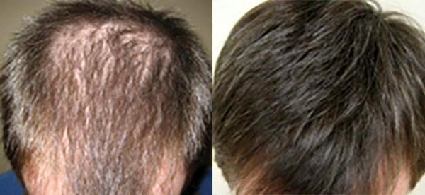 przed po stosowaniu tabletek na wypadanie włosów