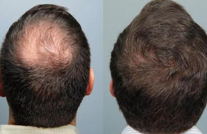 vita hair man efekty po stosowaniu