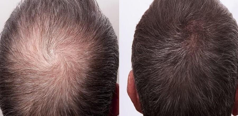 wypadanie włosów tabletki