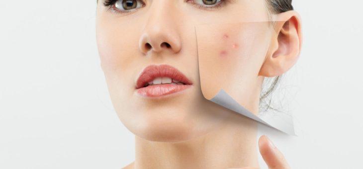 Rodzaje trądziku – jak zapobiegać oraz leczyć ?