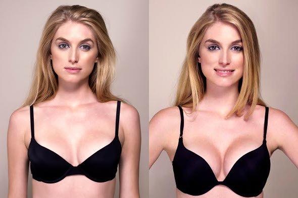 boombreast po kuracji powiększania piersi tabletkami