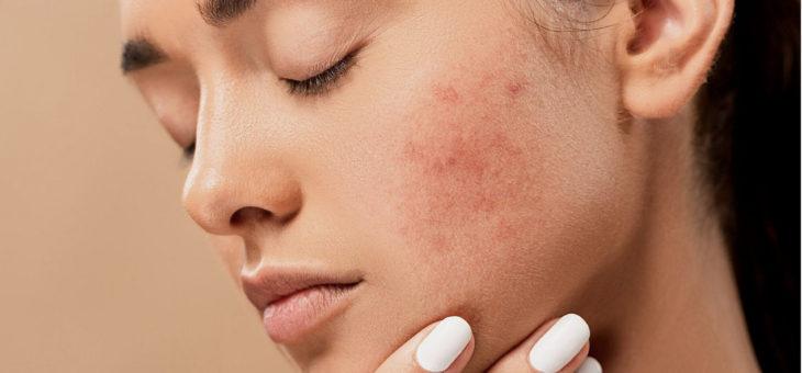 Leczenie trądziku różowatego – pielęgnacja skóry, dieta i terapia